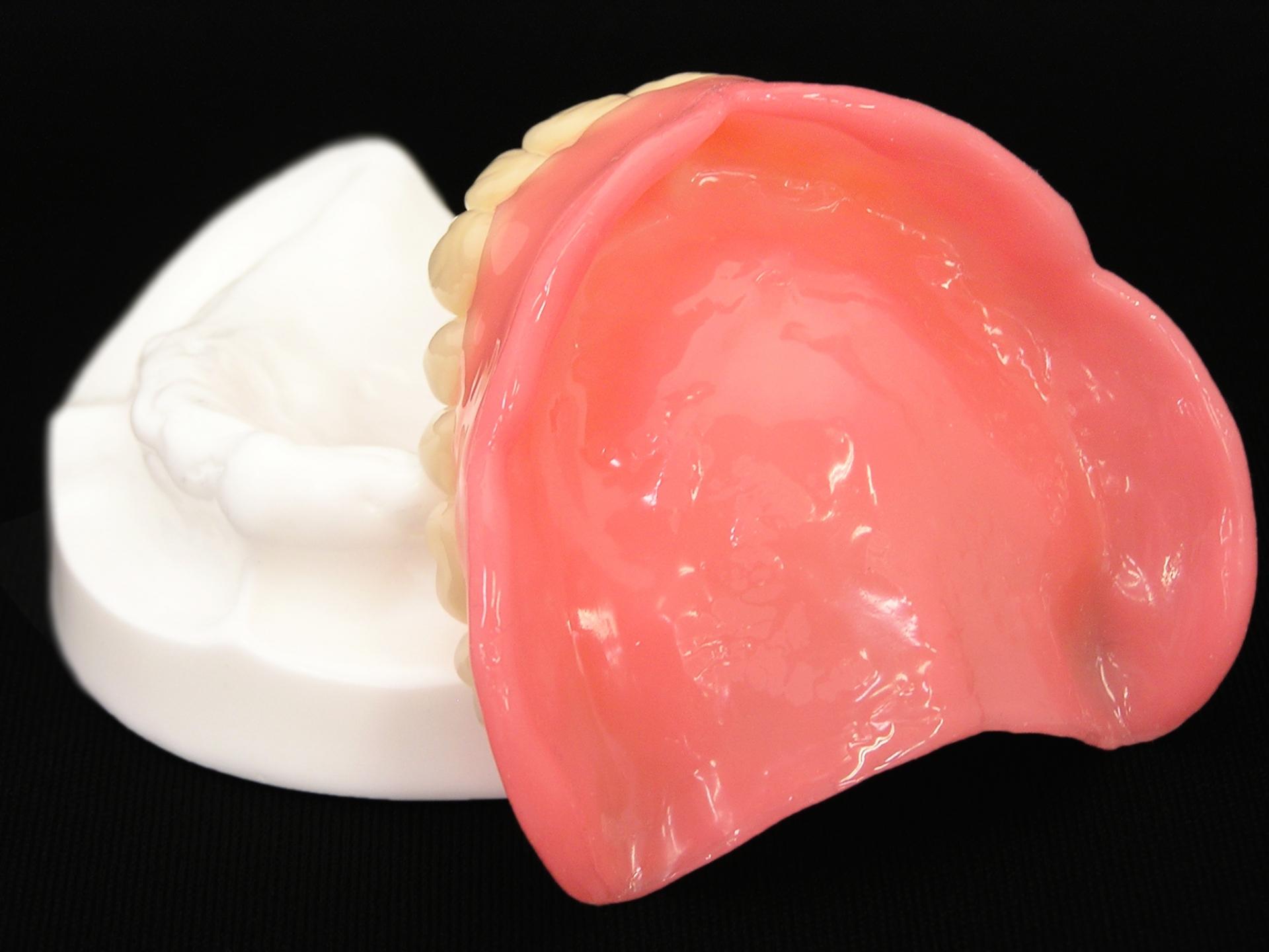 入れ歯の裏側