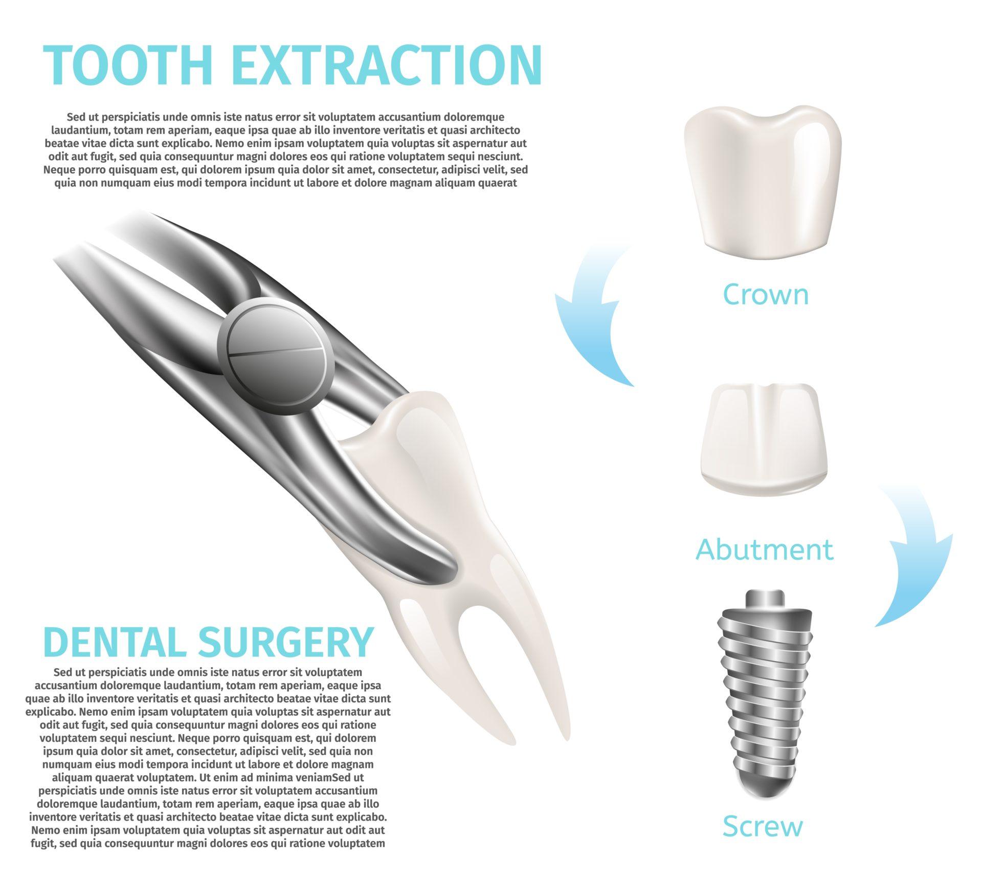 インプラントのための歯の抽出