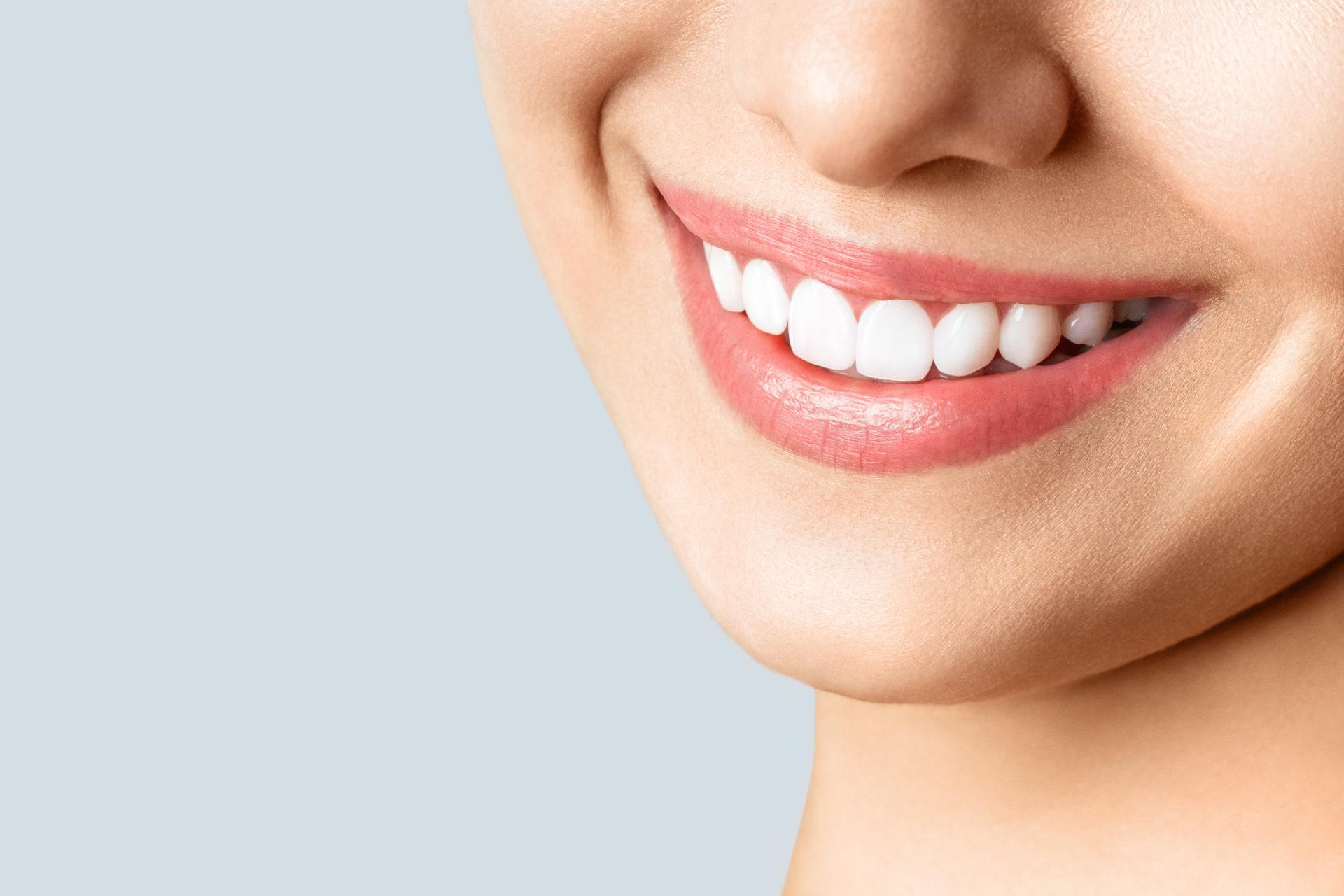 仮歯とわからない白い歯