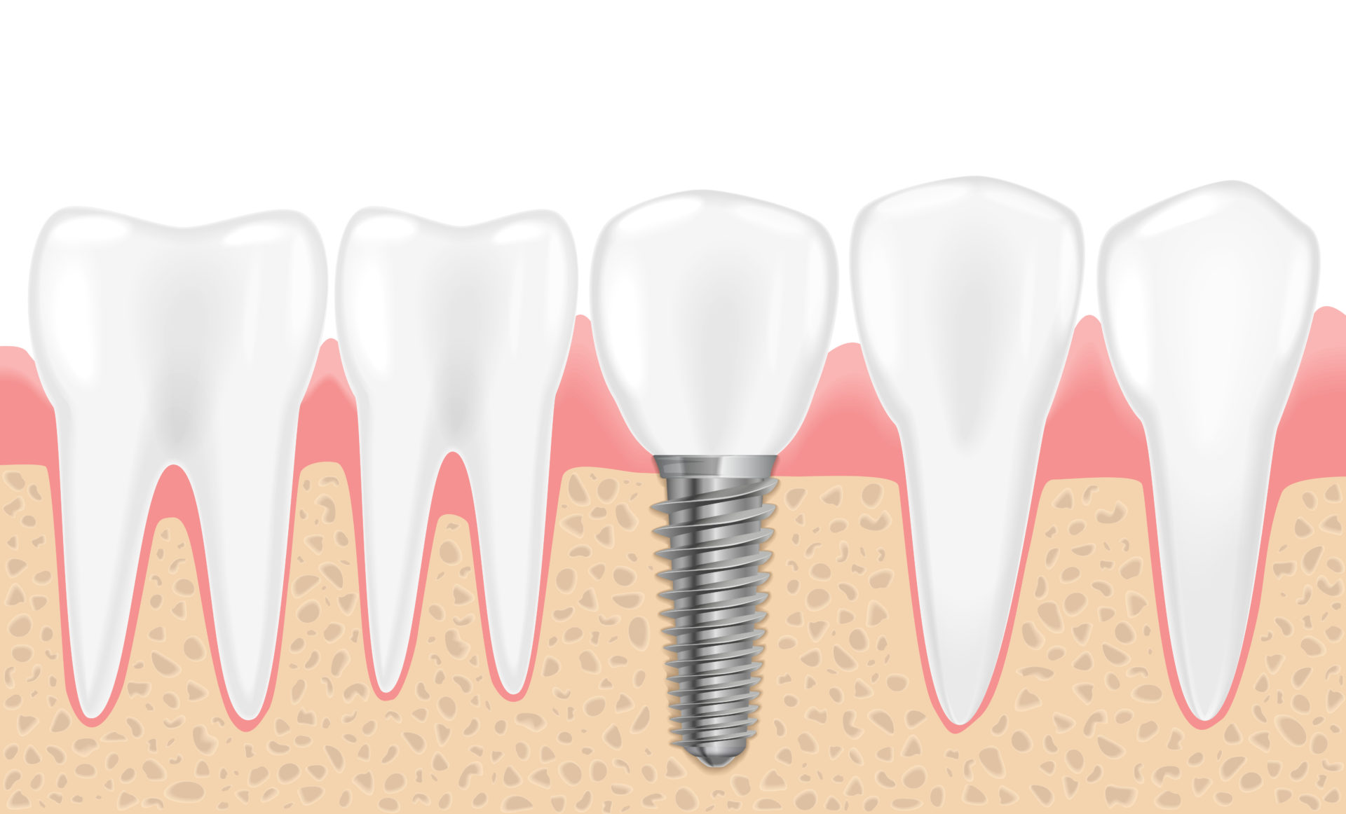 インプラントと顎骨