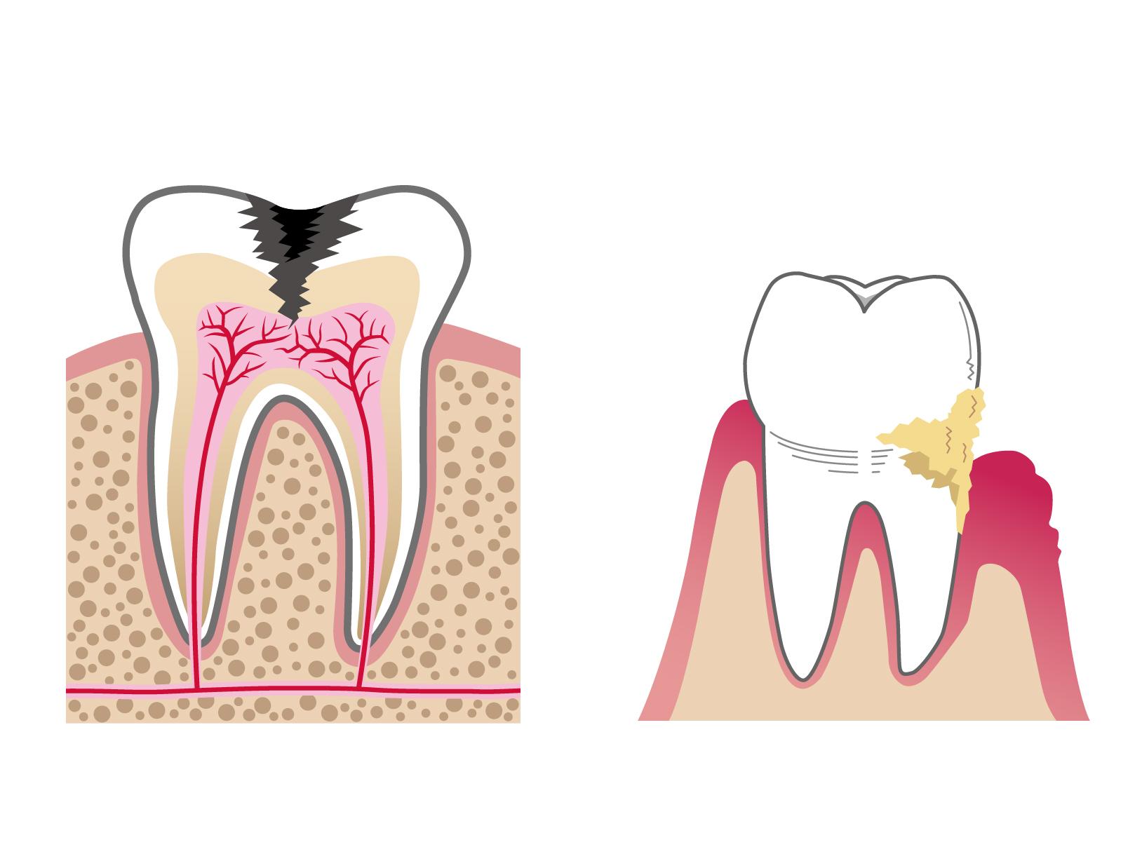虫歯や歯周病があってもインプラントは可能?