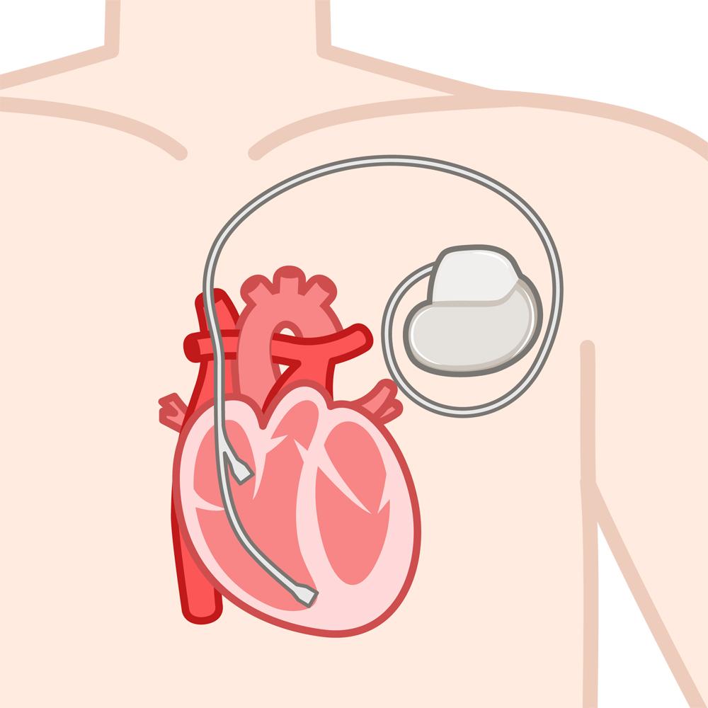 植込み型心臓ペースメーカー
