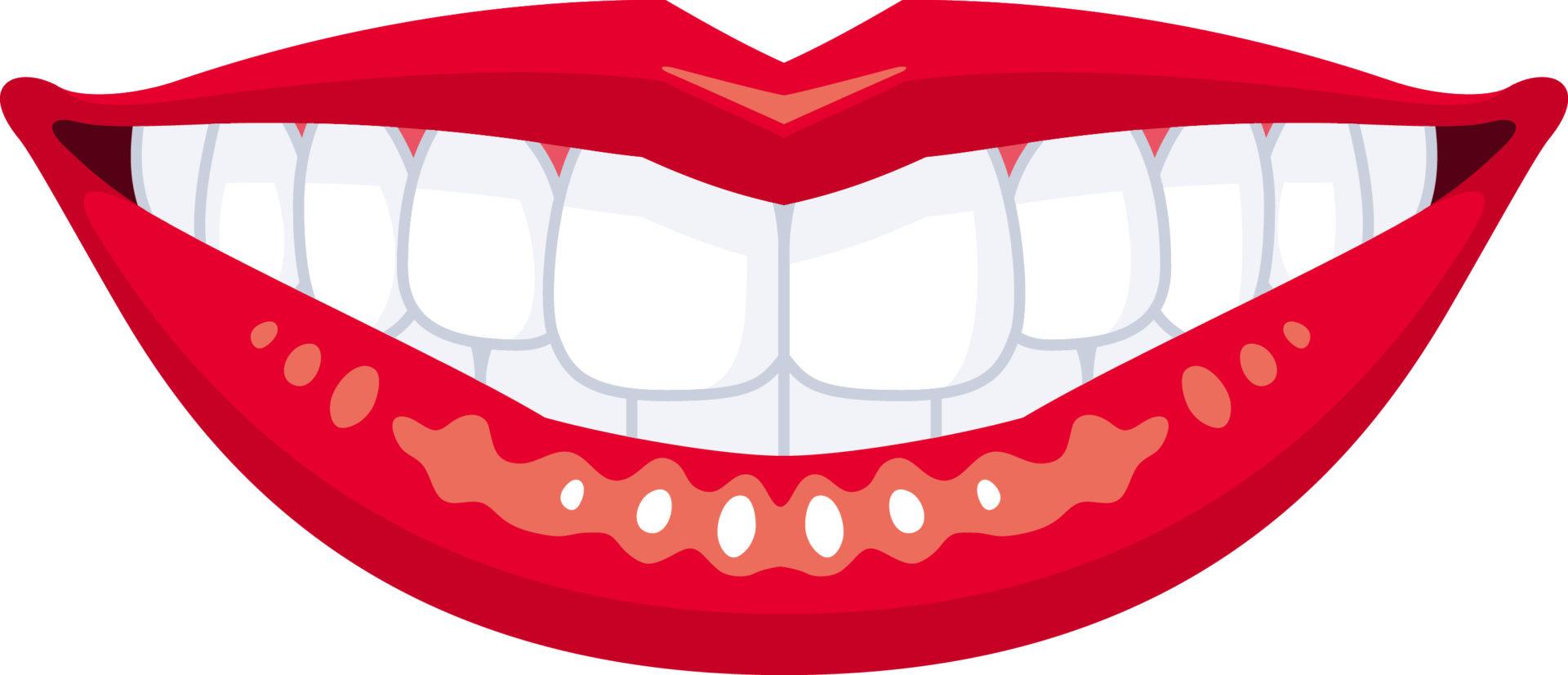 前歯のブリッジはインプラント可能?