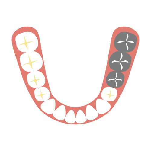 奥歯のブリッジはインプラントにできる?