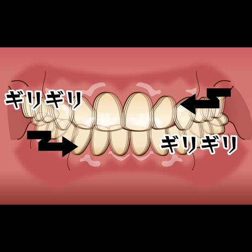 歯ぎしりがあってもインプラントは可能?