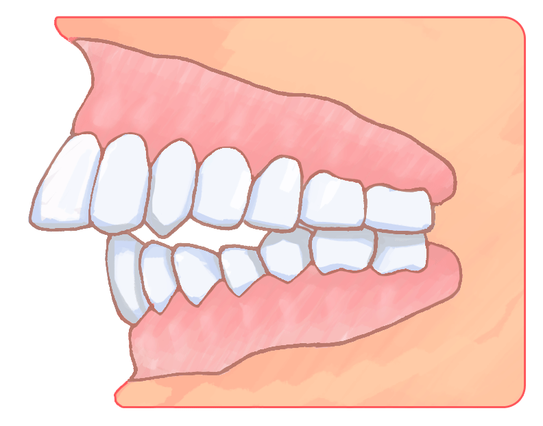 インビザライン 出っ歯