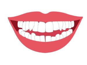 インビザライン 八重歯