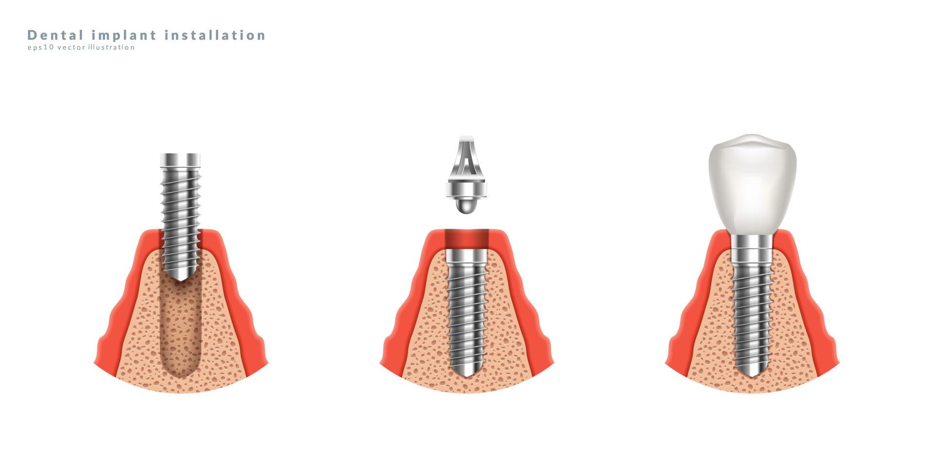 インプラントの構造は、インプラント体・アバットメント・人工歯冠です
