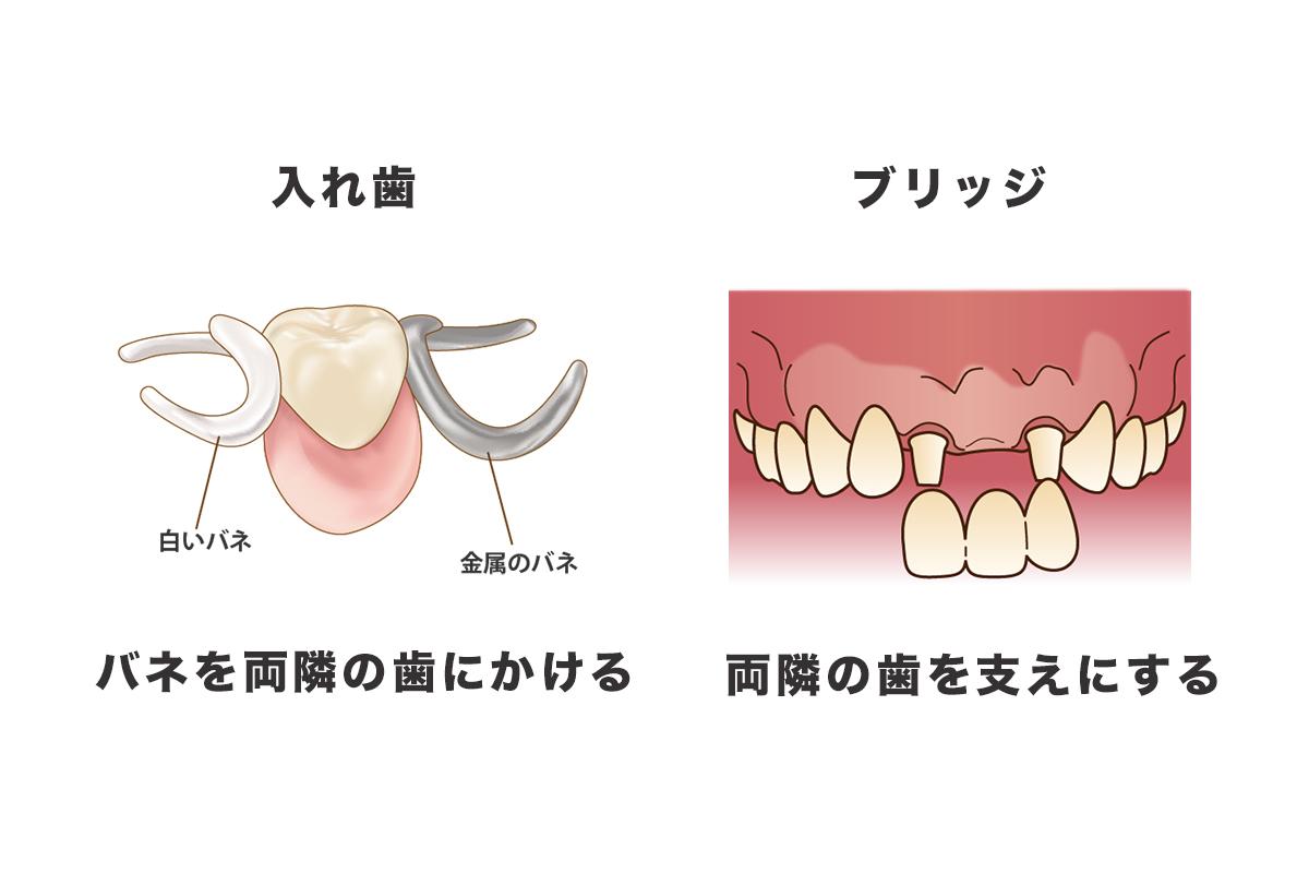 入れ歯とブリッジは健康な歯に負担をかけます