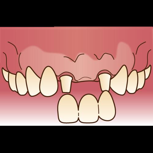 ブリッジは両サイドの歯を削ってつながった被せものを被せます