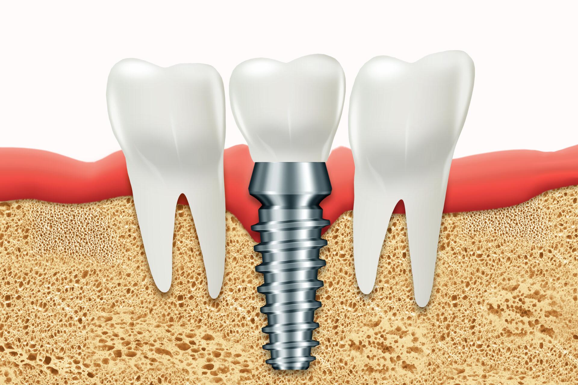 前歯のインプラントのデメリットとは?