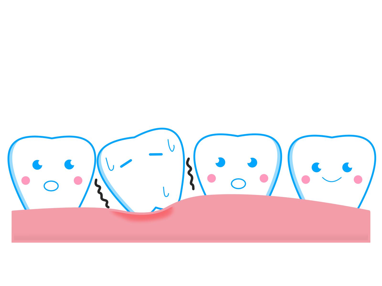 歯がなくなる2大原因は虫歯と歯周病