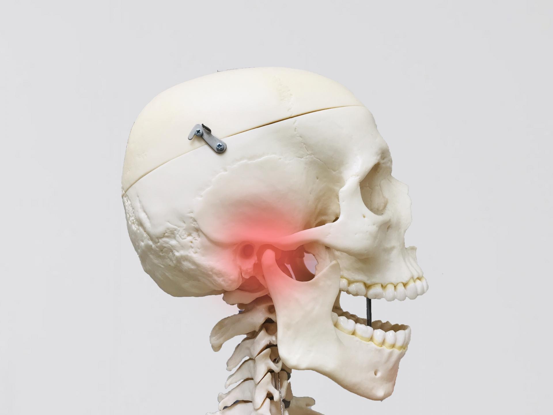 顎に負担がかかると顎関節症になりやすい
