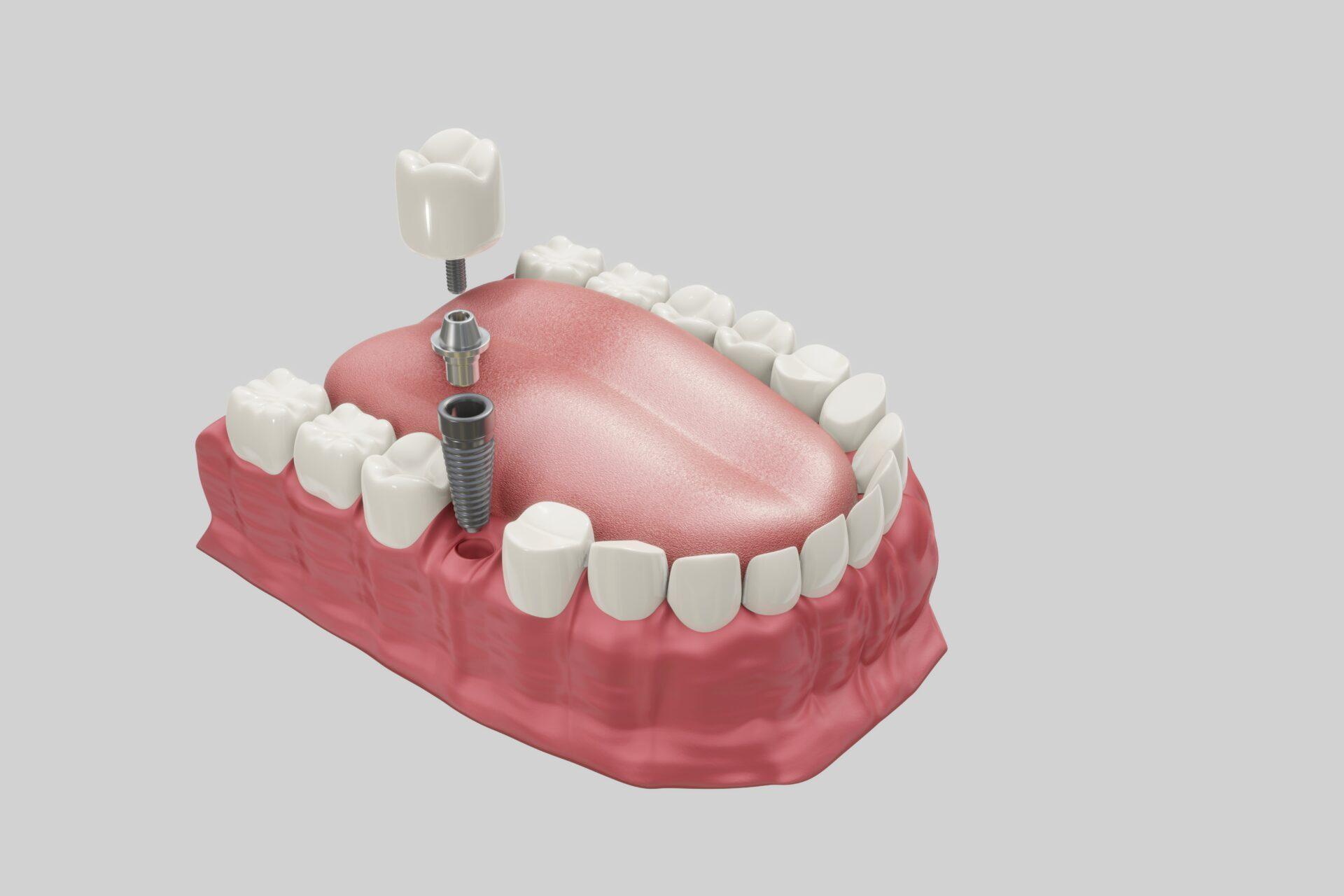 アバットメントはインプラント体と人工歯冠の中間の部品
