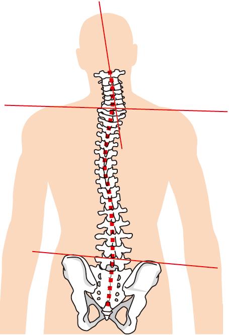 歯が1本なくなるだけで背骨や腰の骨に歪みが生じます